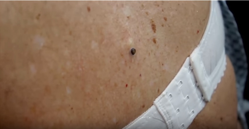 Blackhead On Back dilated pore of winer ...
