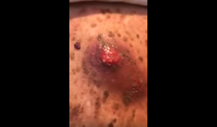 Biggest Cyst Popped on Back | New Pimple Popping Videos