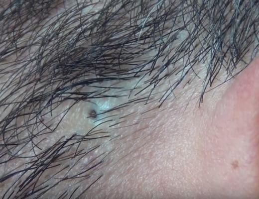 Ingrown hair removal close up