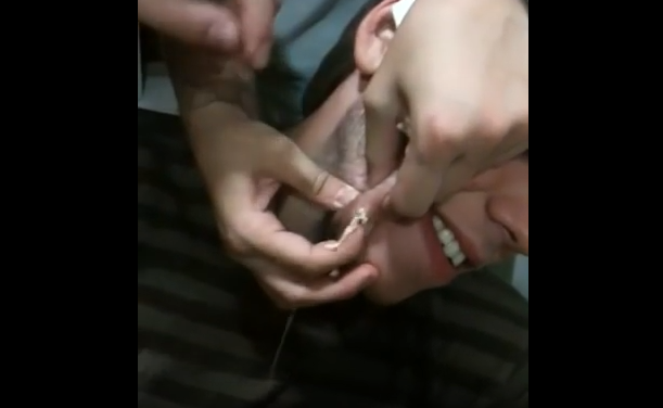 Cyst On The Cheek Explodes When Popped With Knife