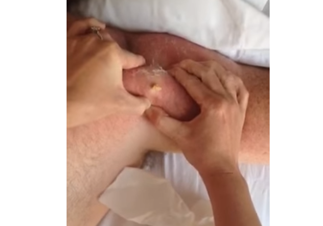 Hard To Pop Cyst On The Shoulder