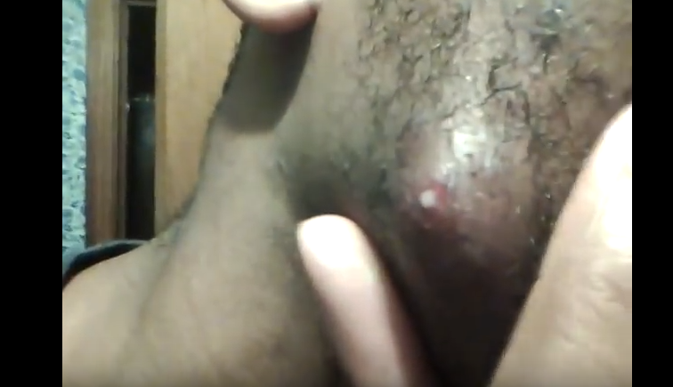 Squirting Ingrown Hair Infection On Face