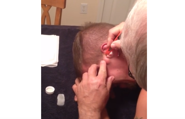Popping Son's Cyst On The Face