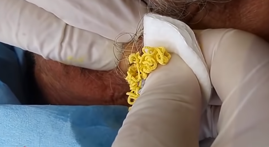 Yellow Cottage Cheese Cyst Removed From Neck