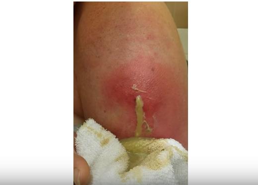 hard lump under skin on leg | New Pimple Popping Videos