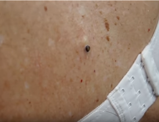 dilated pore of winer removal at home | New Pimple Popping