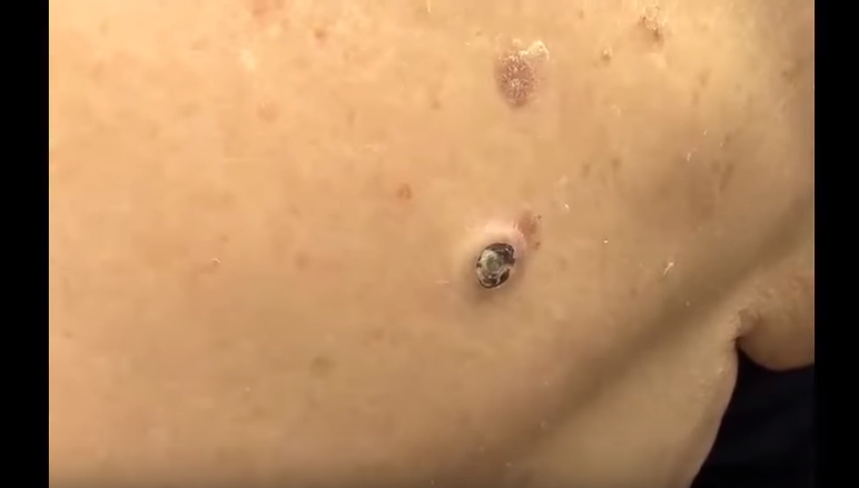 dilated pore | New Pimple Popping Videos