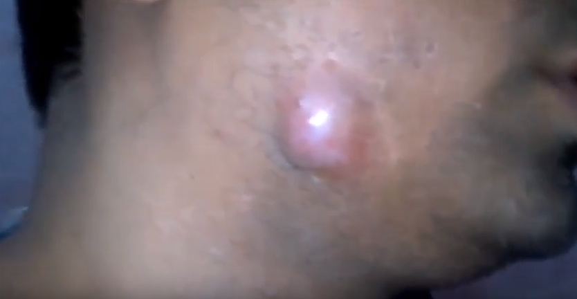 Ingrown Hair Cyst In The Jaw   New Pimple Popping Videos