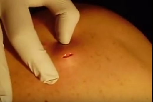 sebaceous cyst popped on its own   New Pimple Popping Videos