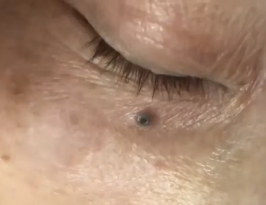 Youtube Blackheads And Large Pores