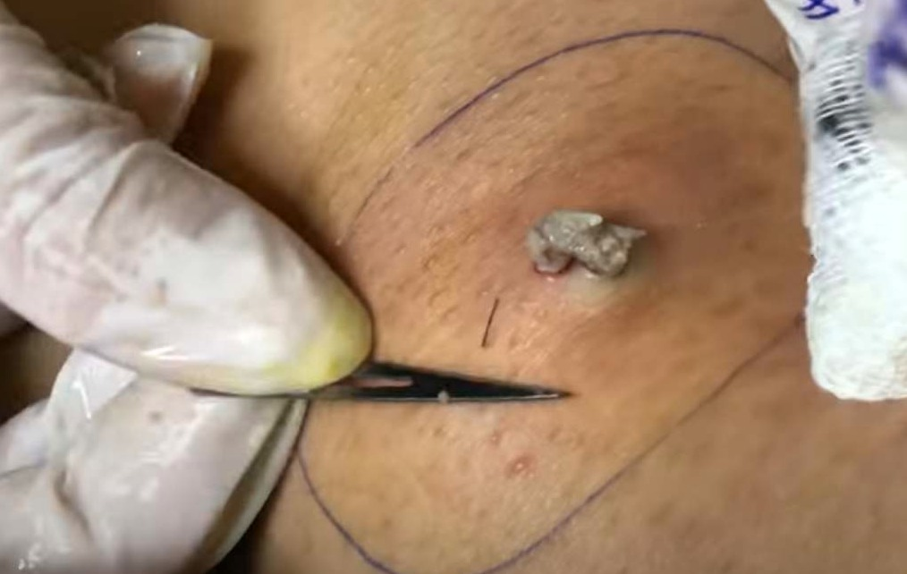 sebaceous cyst removal. | New Pimple Popping Videos